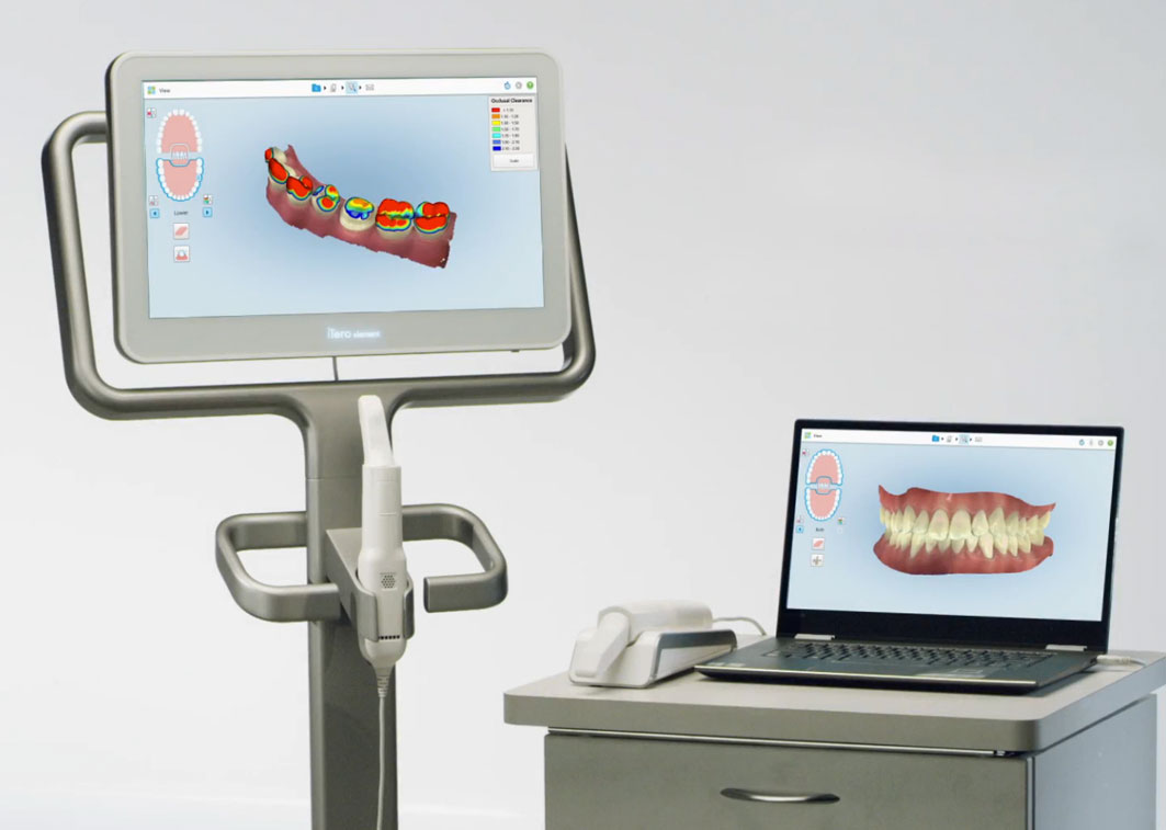 Orthodontic technology